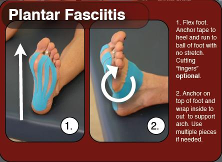 steroid shots for plantar fasciitis