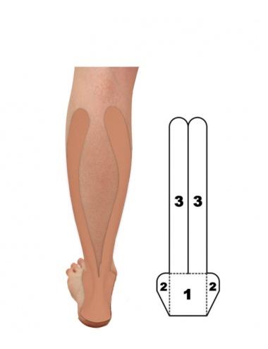 Kindmax Precut Calf & Achilles Support - Beige