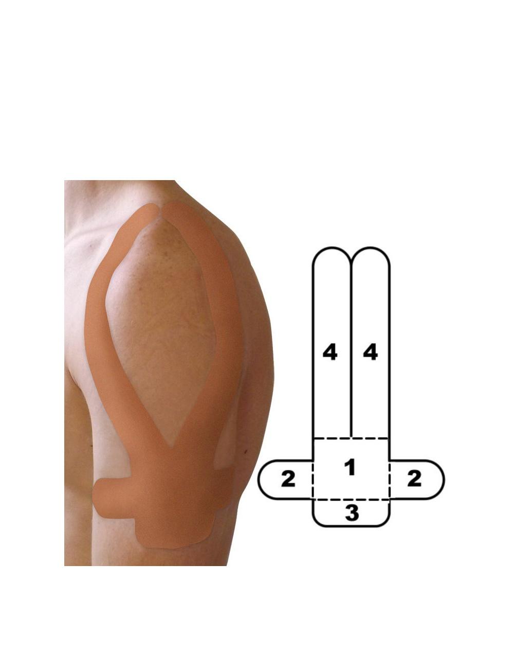 Kindmax Precut Shoulder Tape - Beige