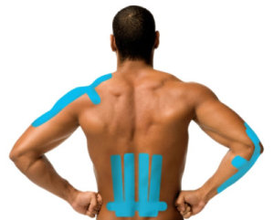 What is Kinesiology Tape