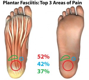 photograph about Plantar Fasciitis Exercises Printable named Kinesiology Taping for Plantar Fasciitis