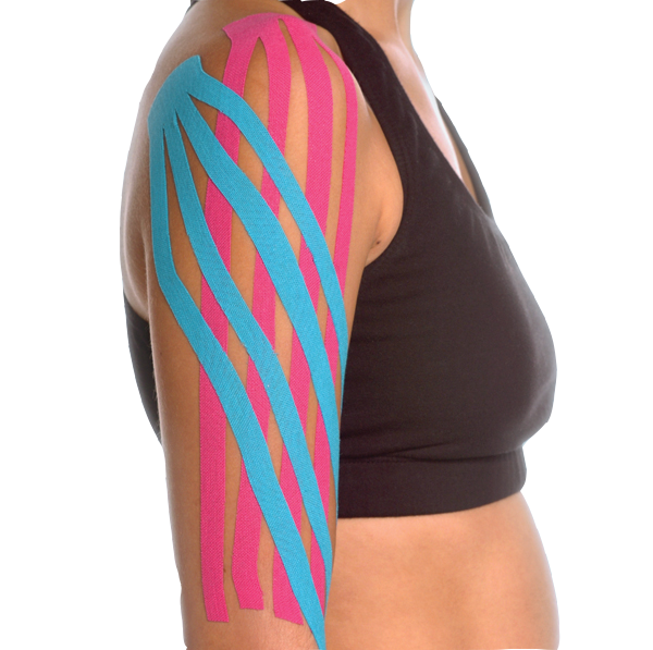Kinesiology Tape For Lymphedema In Breast Cancer Patients