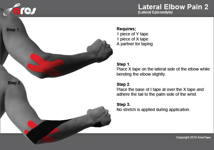 Lateral-Elbow-Pain-2