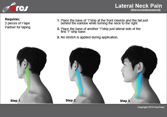 Lateral-neck-pain