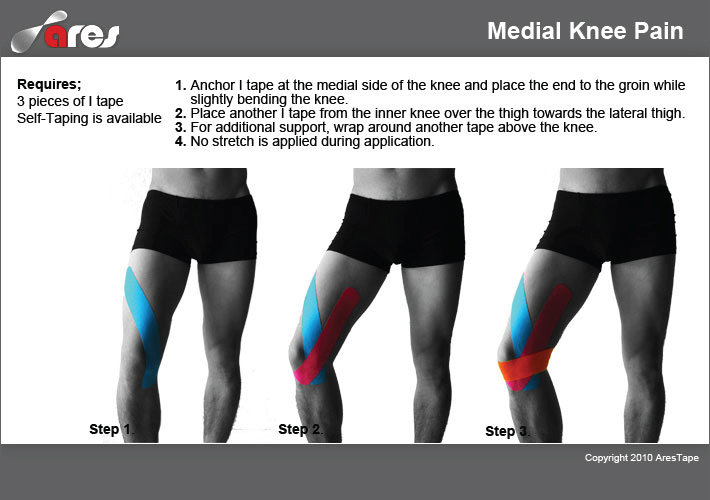 Medial-Knee-Pain