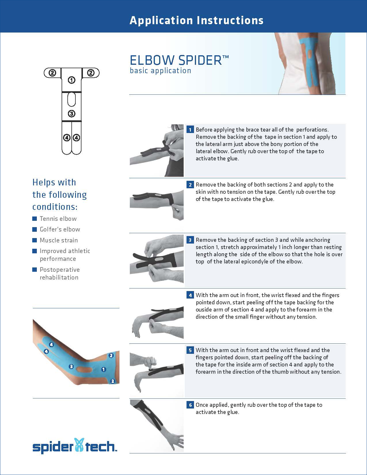 SpiderTech-Elbow-Spider-Application-Instructions